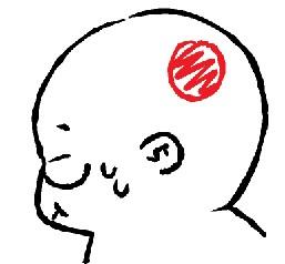 頭痛.jpg